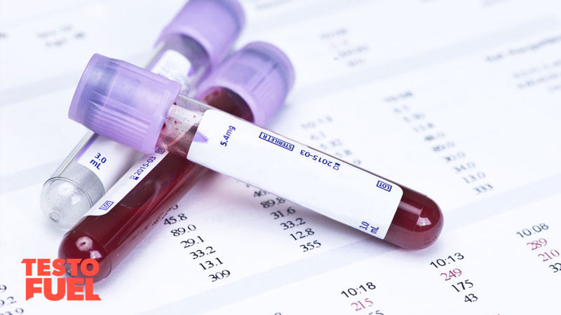 Blood test for low testosterone