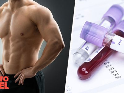 How to Check Testosterone Levels